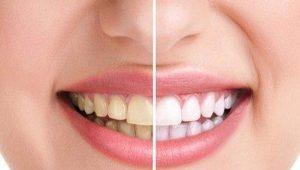 Cara Bikin Gigi Putih Dengan Cara Alami