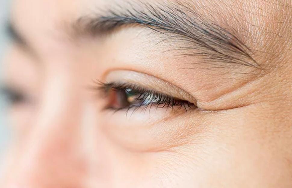 Fakta, penyebab, dan cara mengatasi mata kedutan